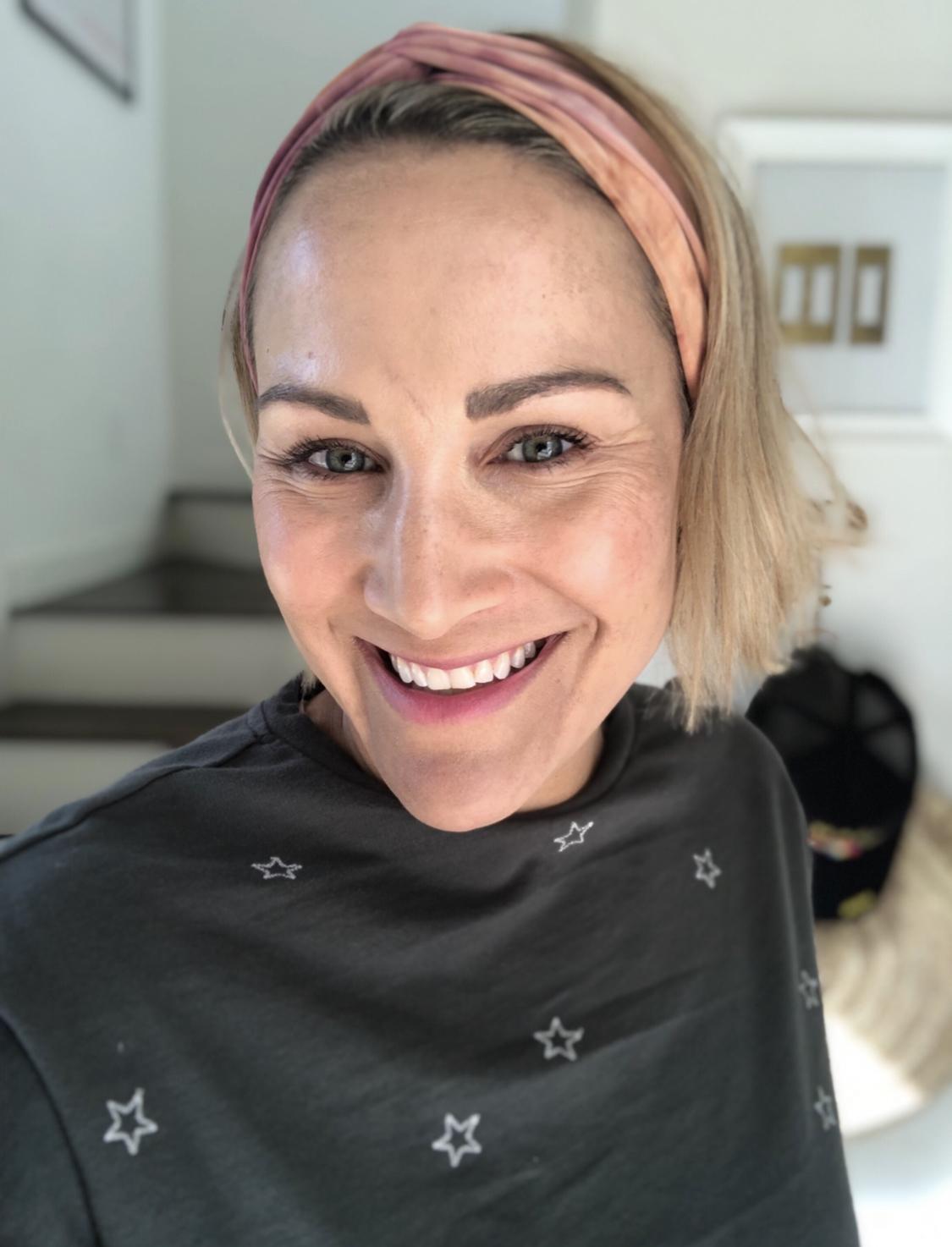 How Microneedling Changed My Skin